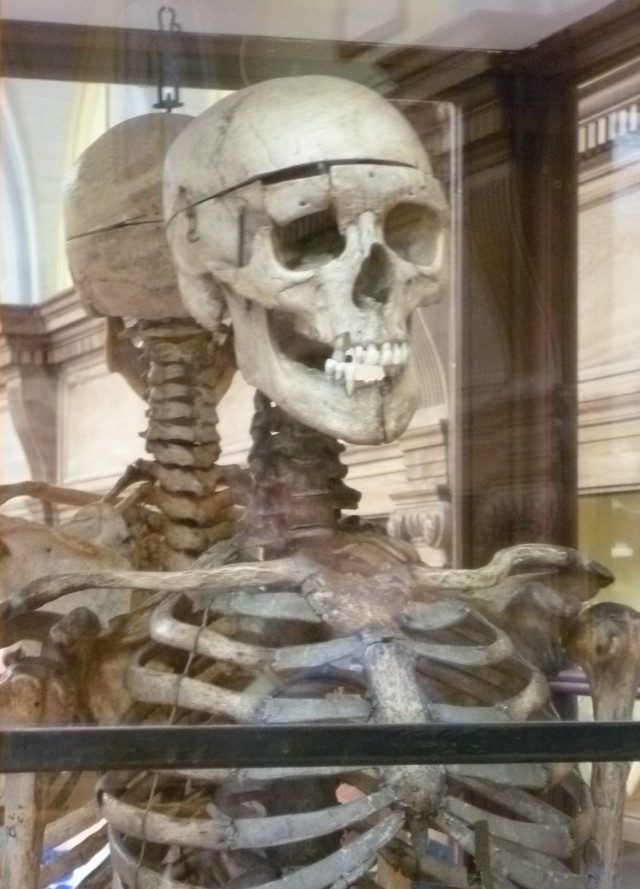 William_Burke's_skeleton